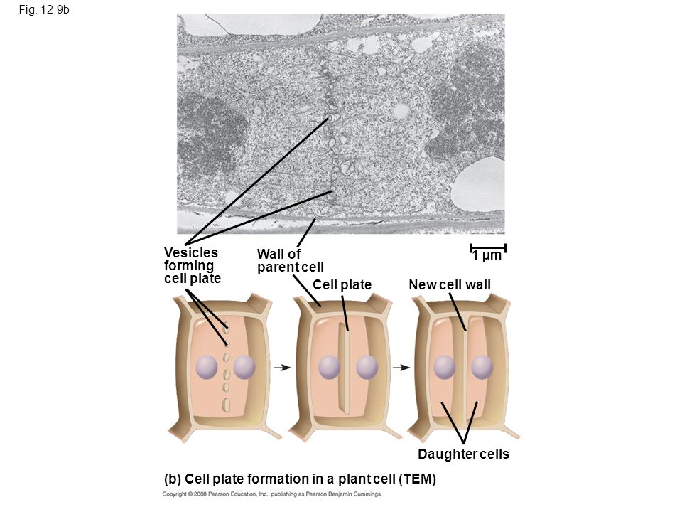 (b) Cell plate formation in a plant cell (TEM)