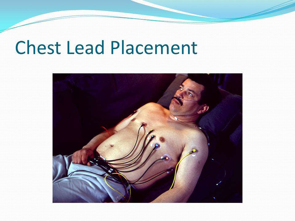 Chest Lead Placement Here is what lead placement looks like on a patient.