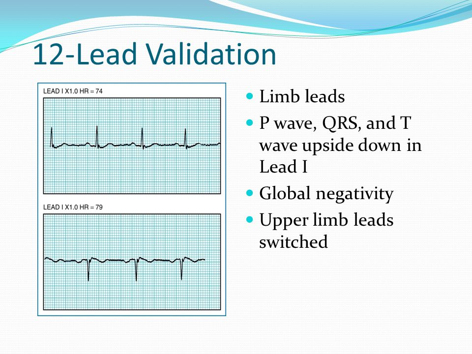12-Lead Validation Limb leads