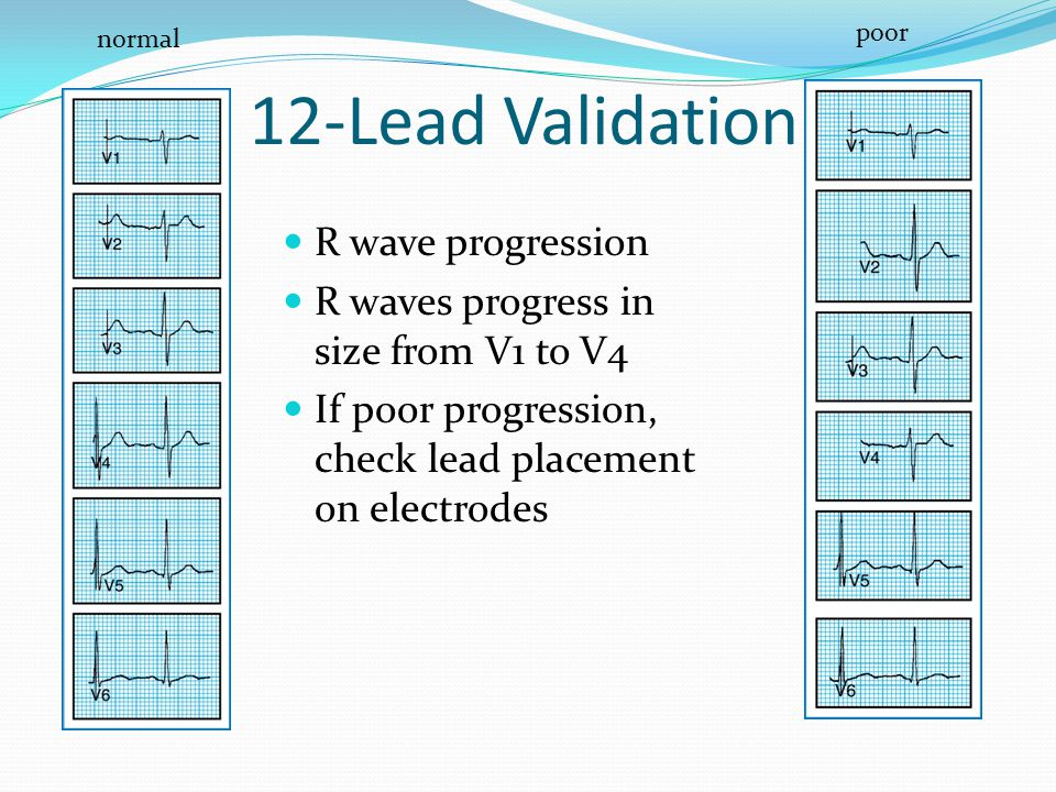 12-Lead Validation R wave progression