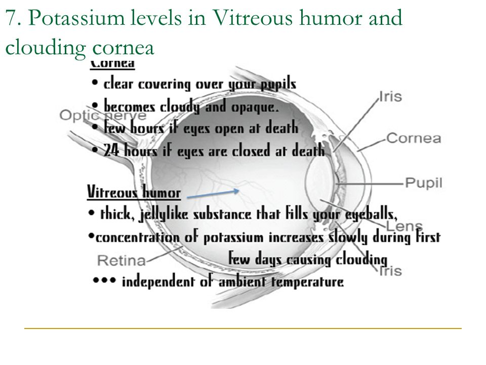 7. Potassium levels in Vitreous humor and clouding cornea