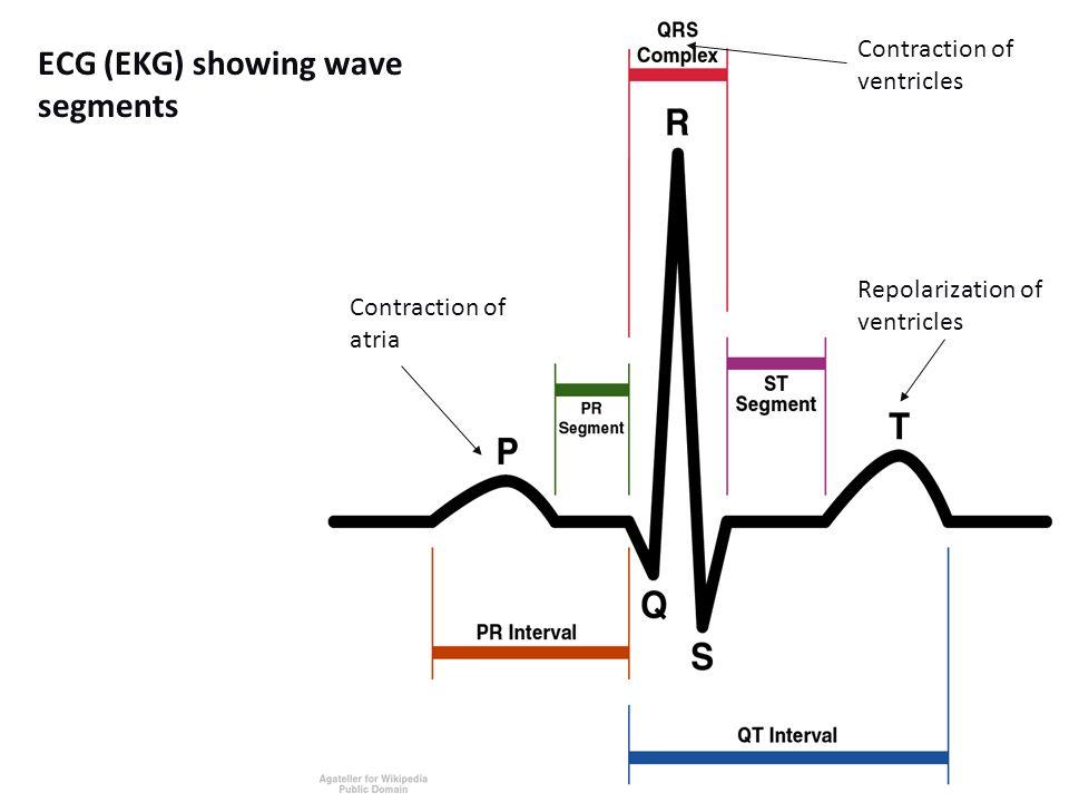 ECG (EKG) showing wave segments