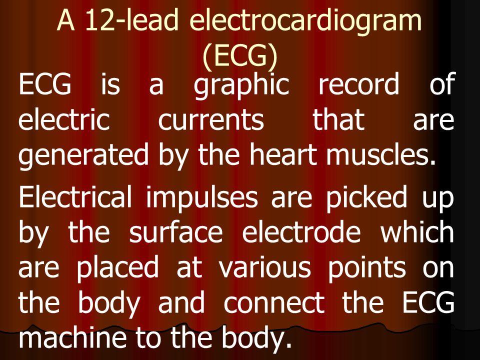 A 12-lead electrocardiogram (ECG)