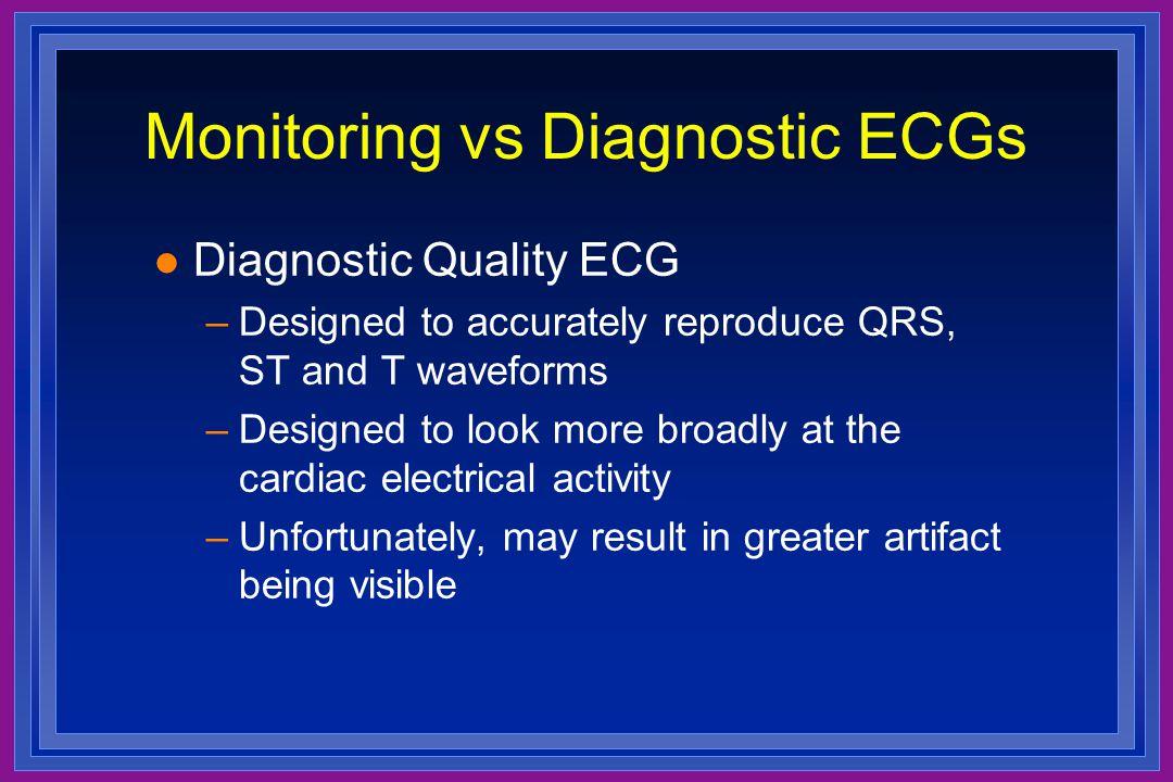 Monitoring vs Diagnostic ECGs