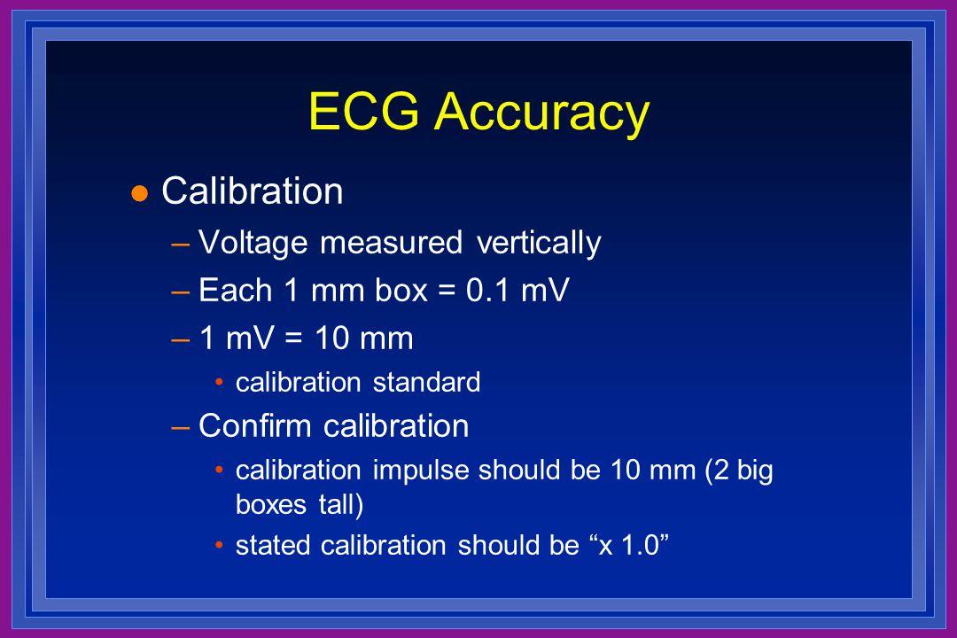 ECG Accuracy Calibration Voltage measured vertically