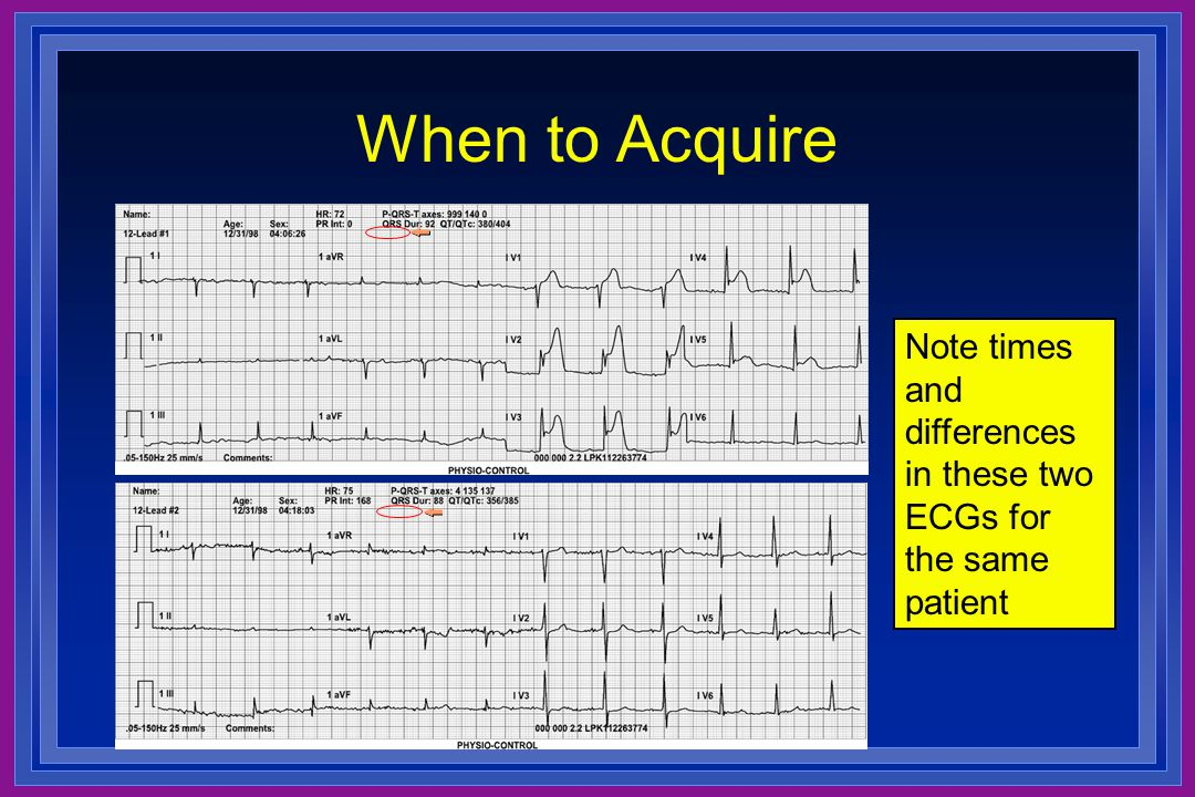 When to Acquire Note times and differences in these two ECGs for the same patient. These tracings show how much the ECG can change in a short time.