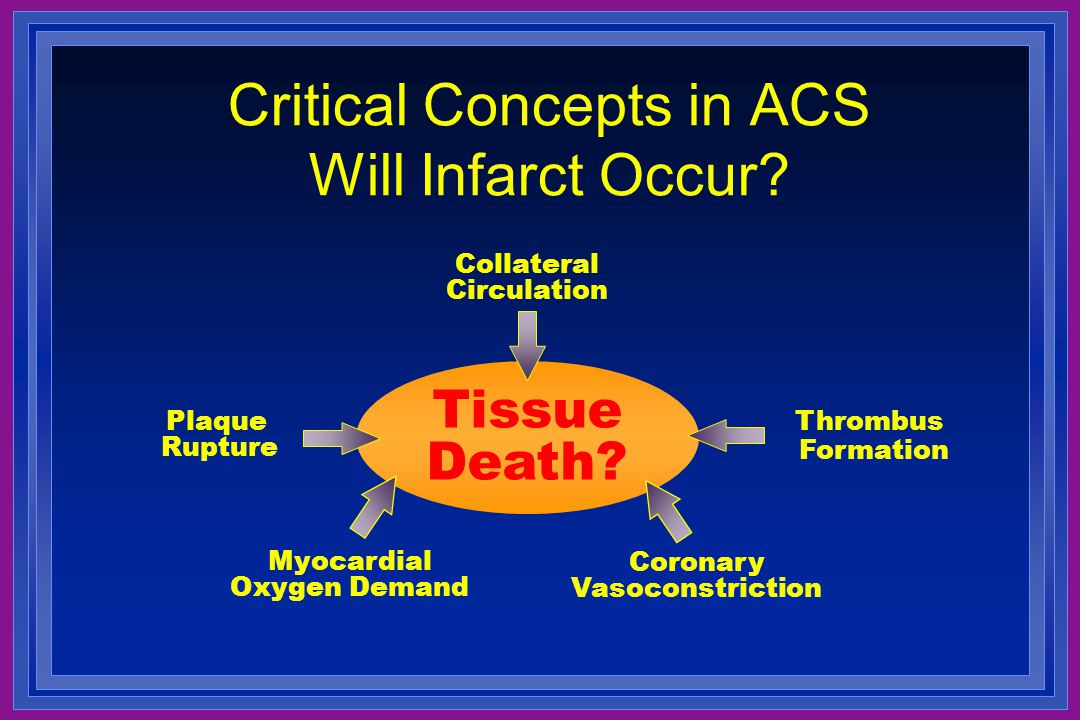 Critical Concepts in ACS Will Infarct Occur