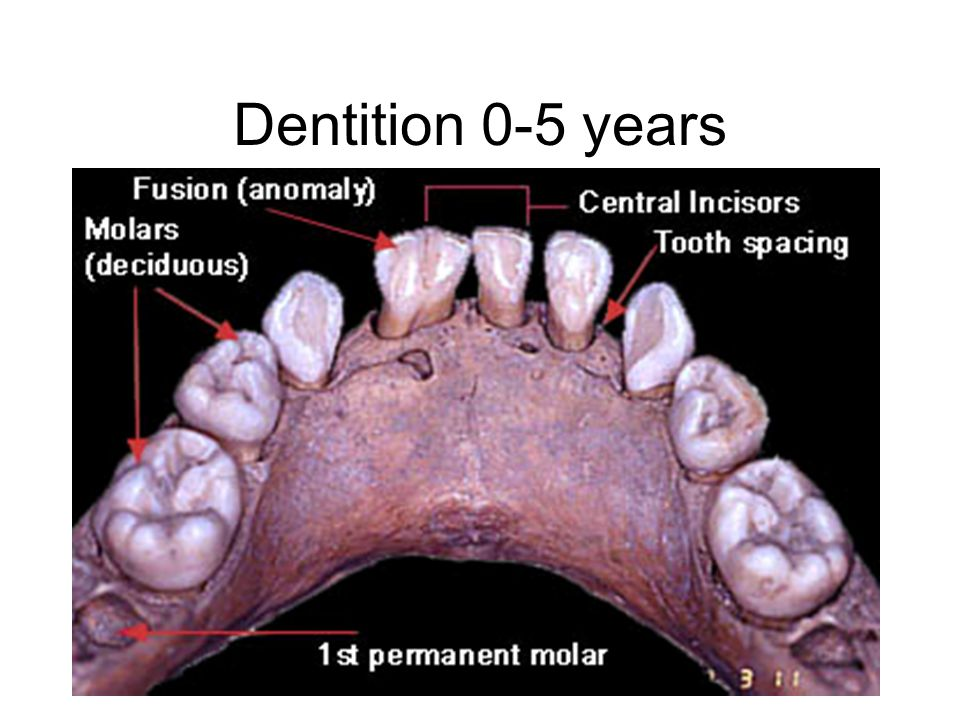 Dentition 0-5 years