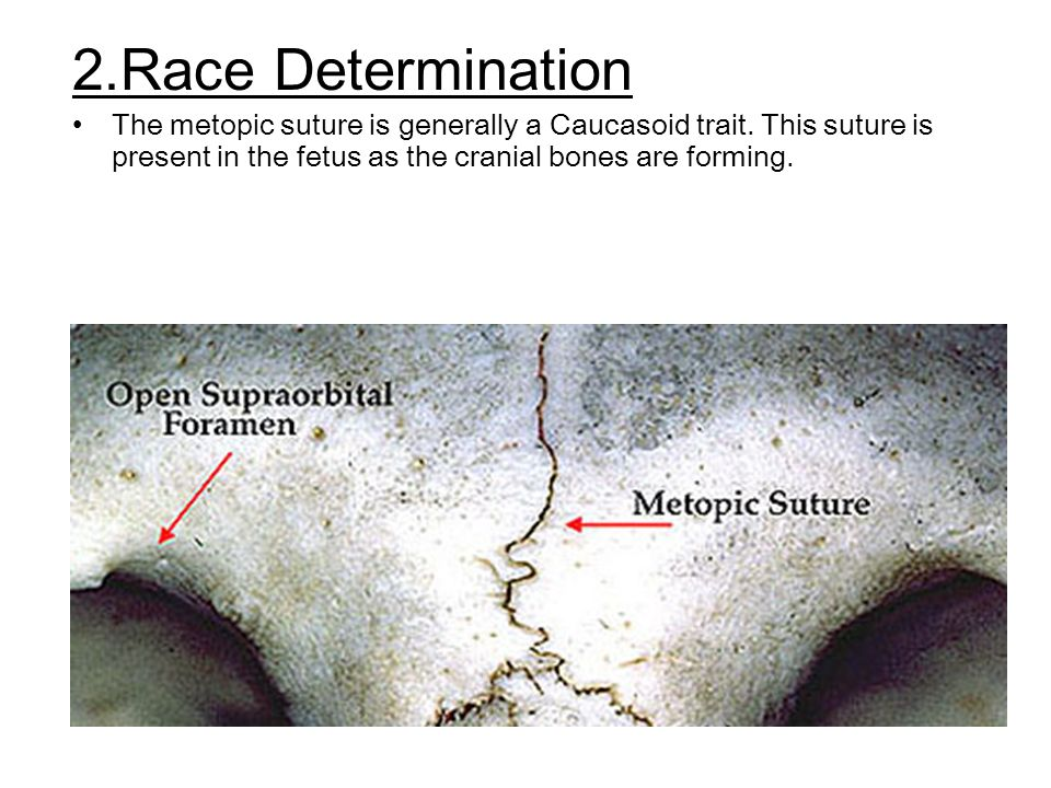 2.Race Determination The metopic suture is generally a Caucasoid trait.
