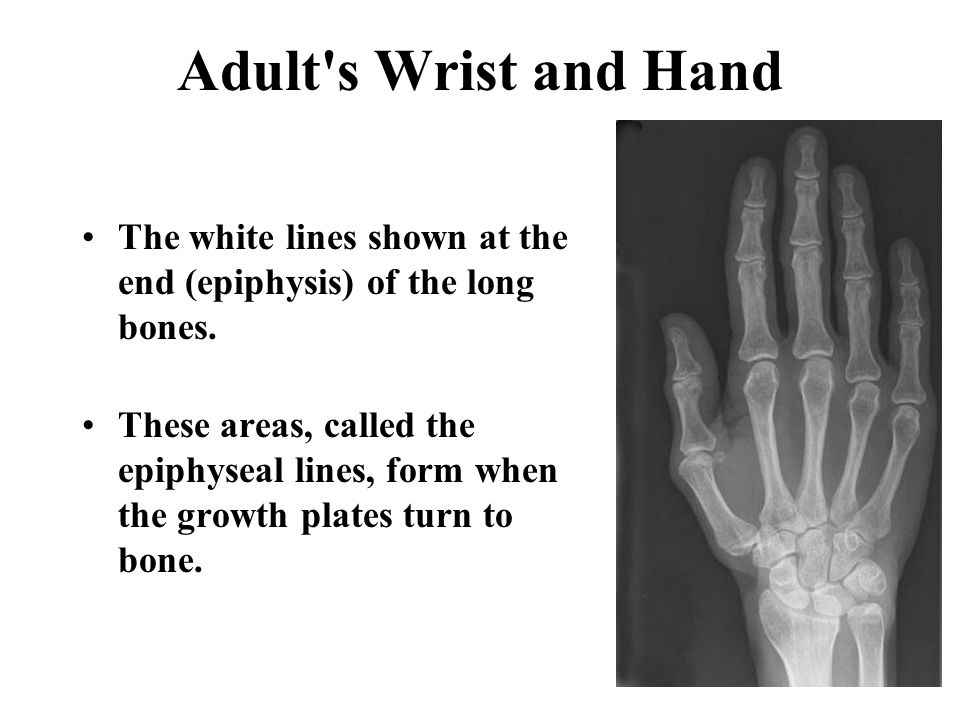 Adult s Wrist and Hand The white lines shown at the end (epiphysis) of the long bones.