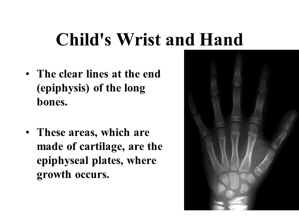 Child s Wrist and Hand The clear lines at the end (epiphysis) of the long bones.