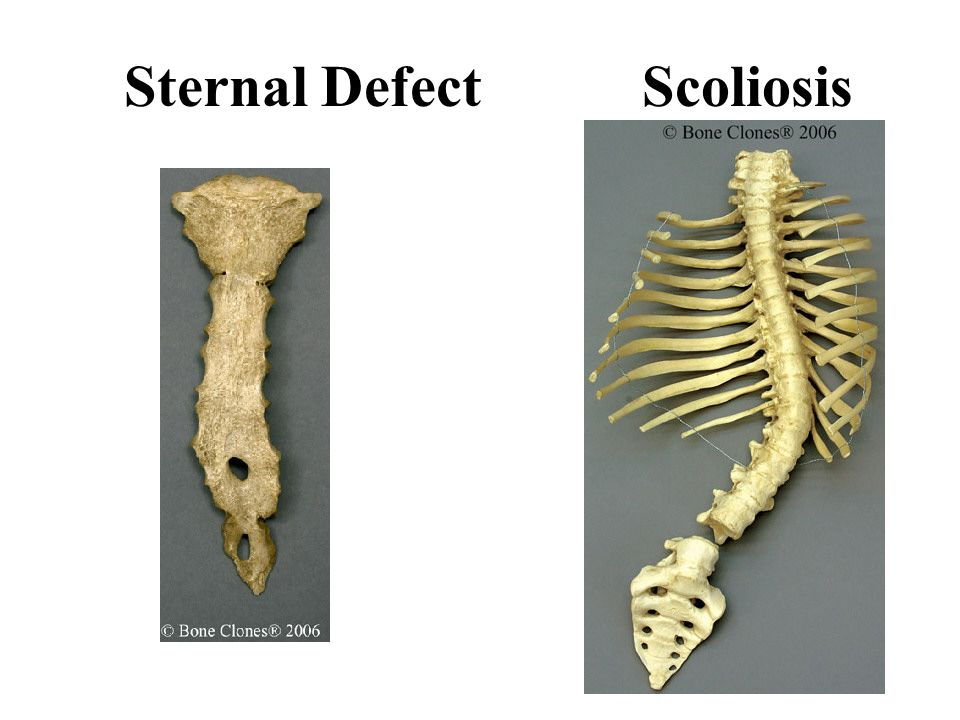 Sternal Defect Scoliosis