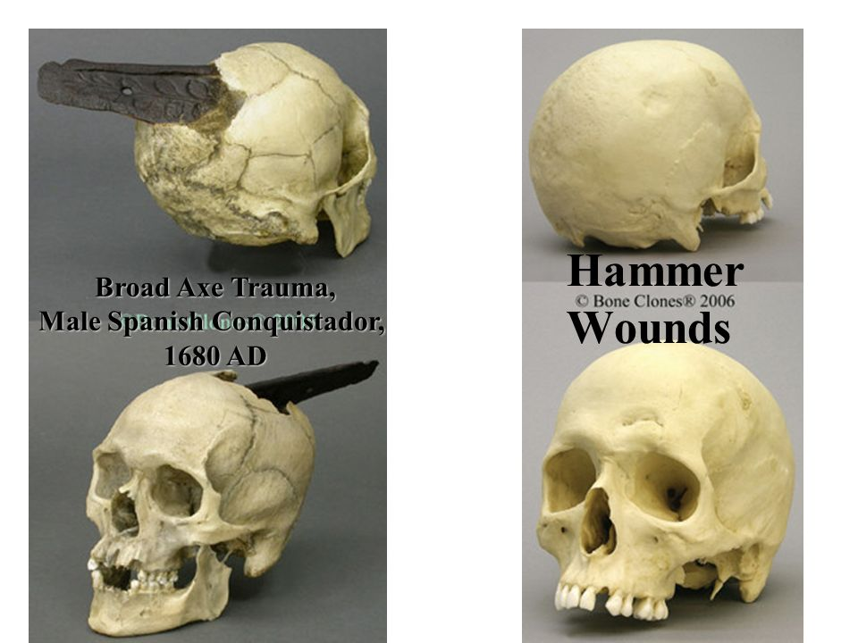 Broad Axe Trauma, Male Spanish Conquistador,