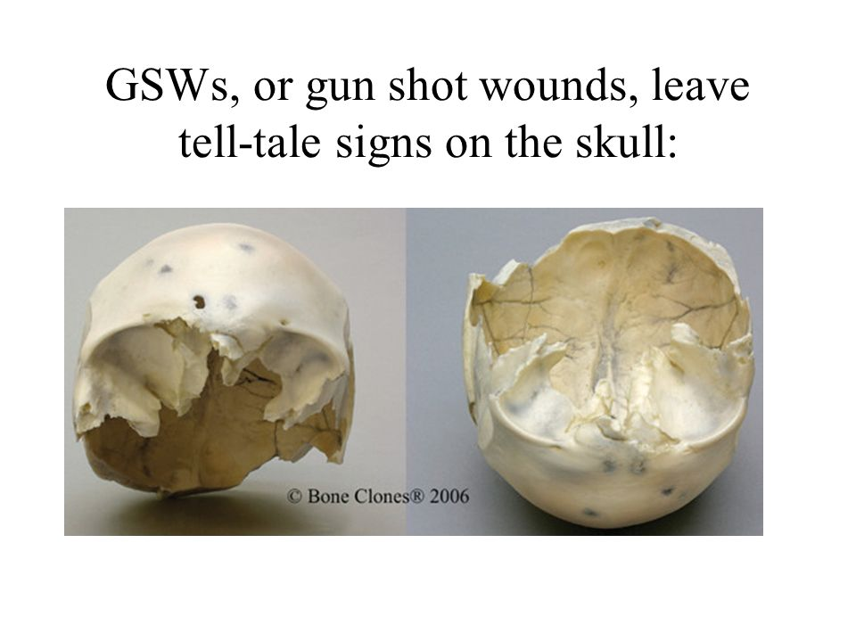 GSWs, or gun shot wounds, leave tell-tale signs on the skull: