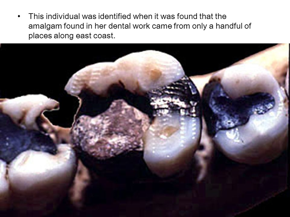 This individual was identified when it was found that the amalgam found in her dental work came from only a handful of places along east coast.
