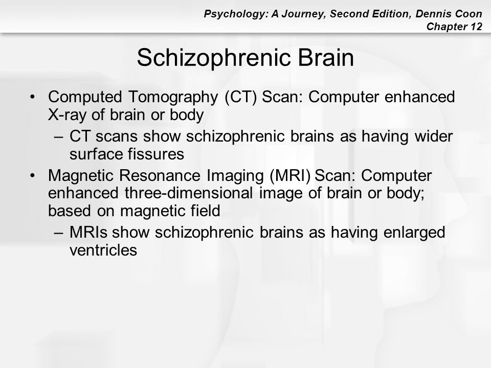 Schizophrenic Brain Computed Tomography (CT) Scan: Computer enhanced X-ray of brain or body.