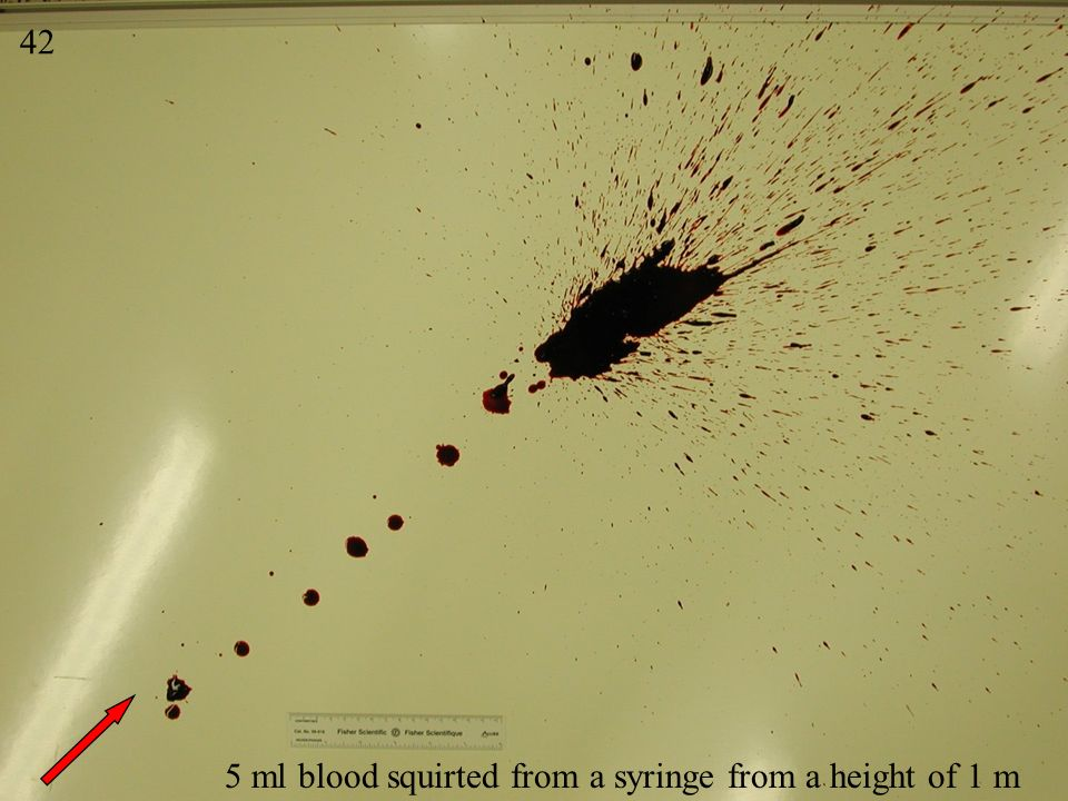 42 Splash 1 5 ml blood squirted from a syringe from a height of 1 m