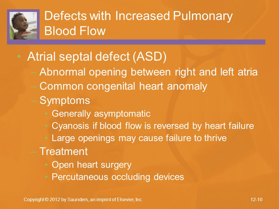 Defects with Increased Pulmonary Blood Flow