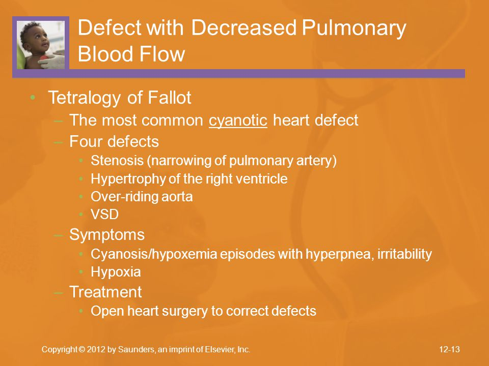 Defect with Decreased Pulmonary Blood Flow