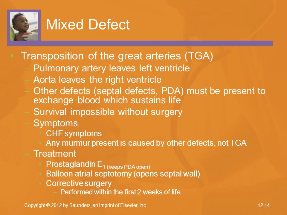Mixed Defect Transposition of the great arteries (TGA)