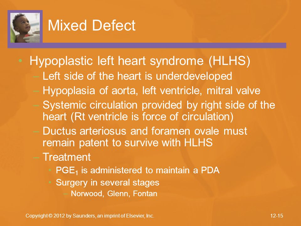 Mixed Defect Hypoplastic left heart syndrome (HLHS)