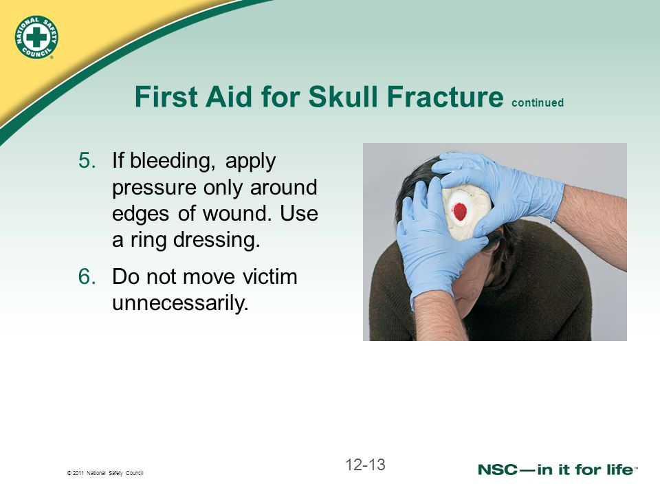 First Aid for Skull Fracture continued