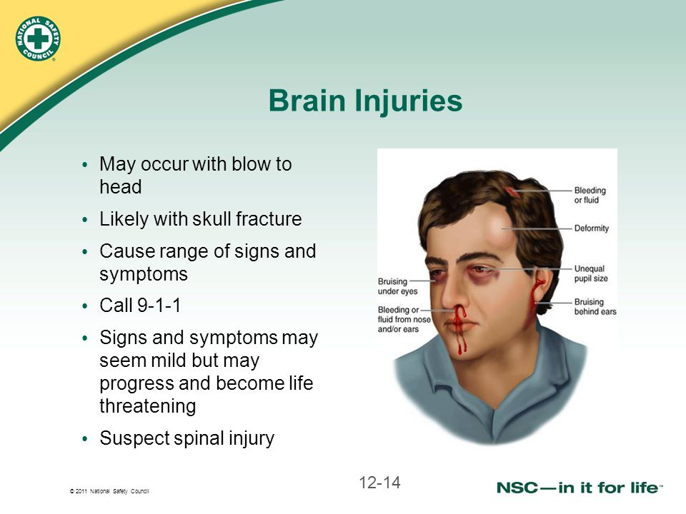 Brain Injuries May occur with blow to head Likely with skull fracture