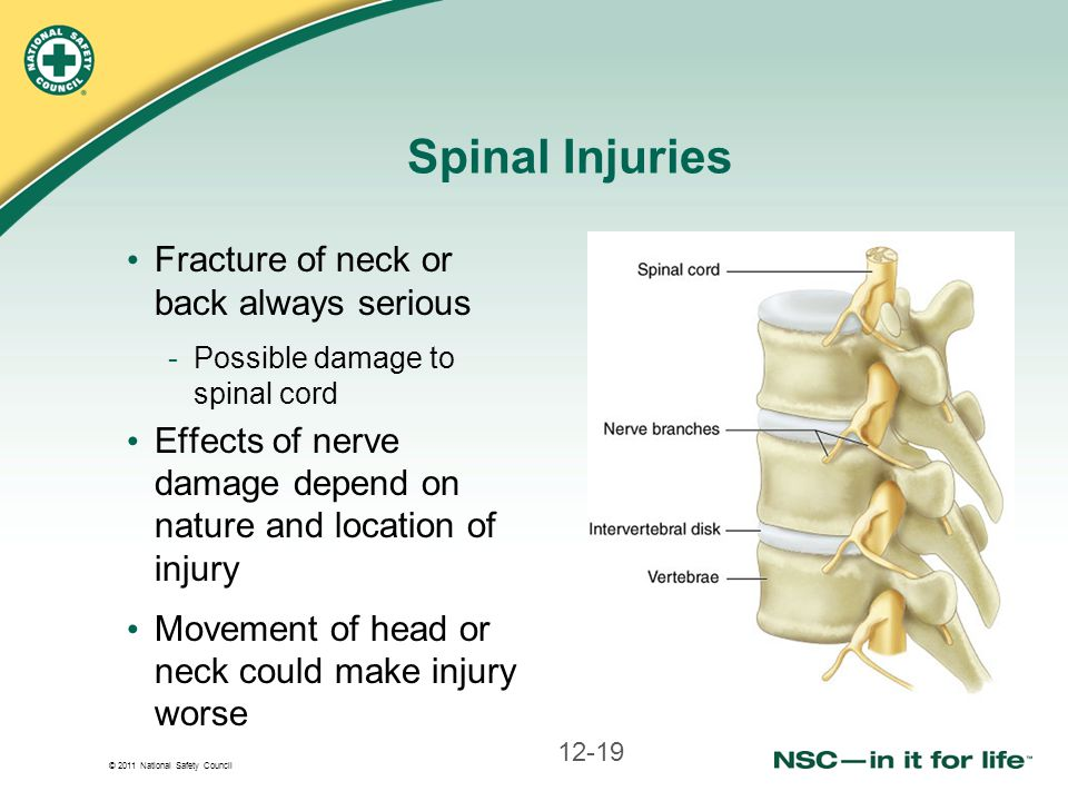 Spinal Injuries Fracture of neck or back always serious