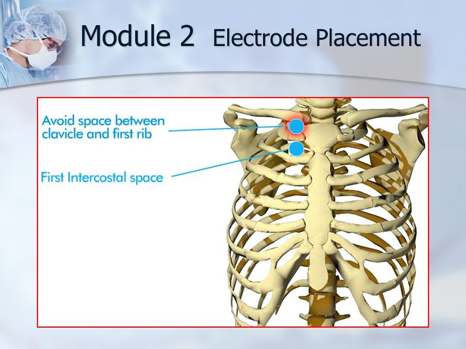 Module 2 Electrode Placement