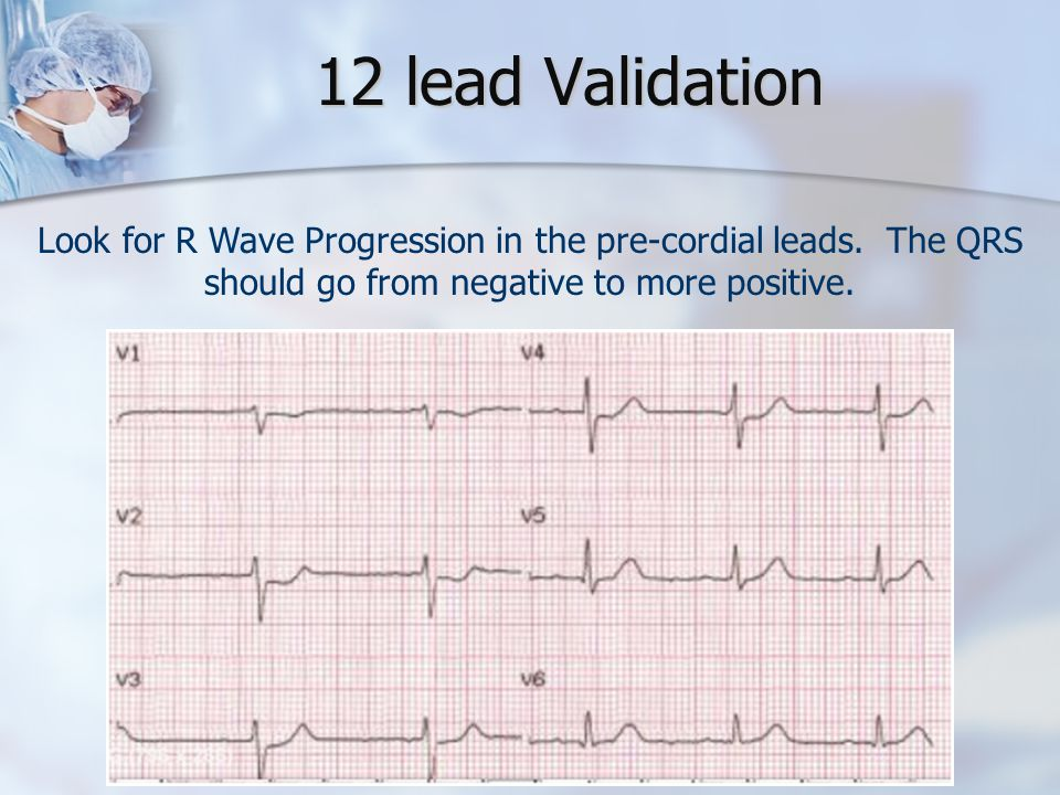 12 lead Validation Look for R Wave Progression in the pre-cordial leads.