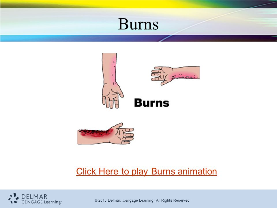 Click Here to play Burns animation