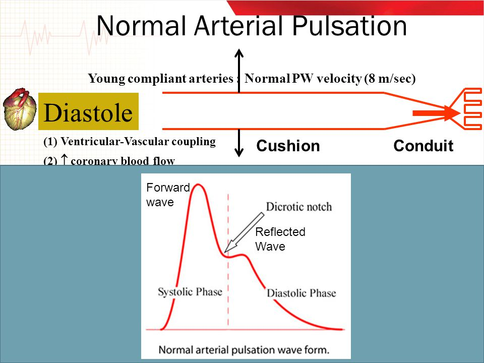 Normal Arterial Pulsation