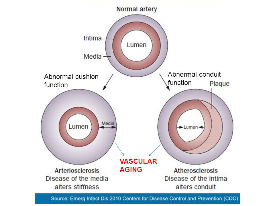 Abnormal conduit function Abnormal cushion function VASCULAR AGING