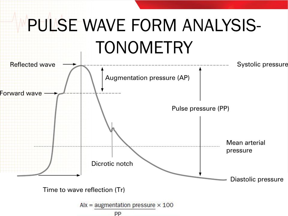 PULSE WAVE FORM ANALYSIS- TONOMETRY