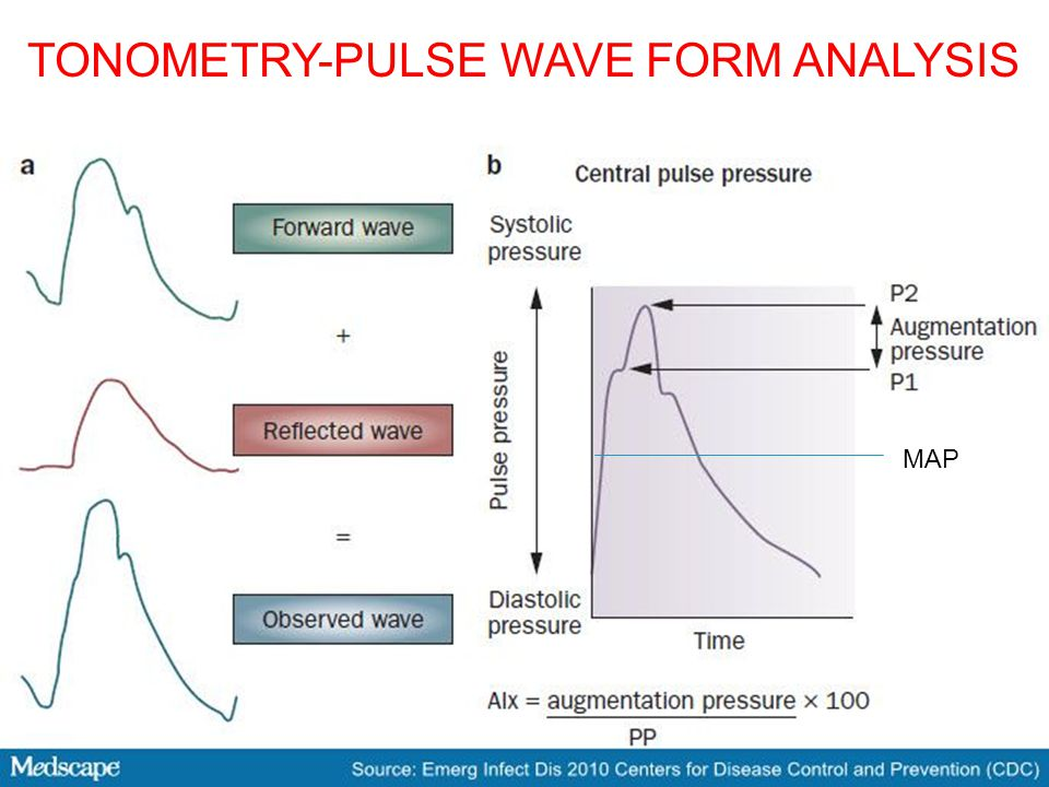 TONOMETRY-PULSE WAVE FORM ANALYSIS