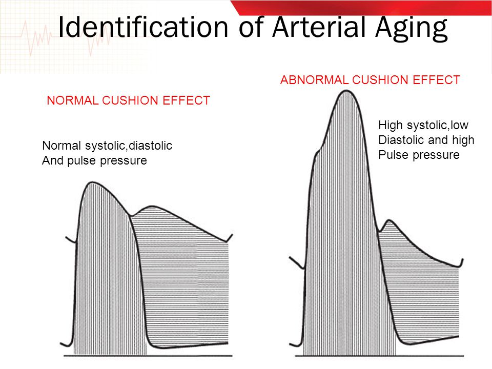 Identification of Arterial Aging