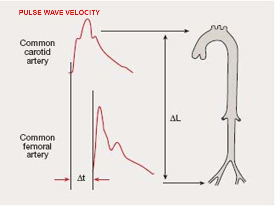PULSE WAVE VELOCITY