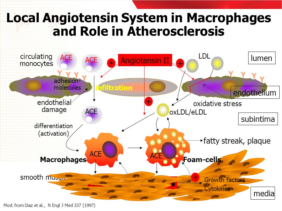 Local Angiotensin System in Macrophages and Role in Atherosclerosis