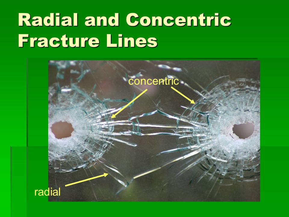 Radial and Concentric Fracture Lines