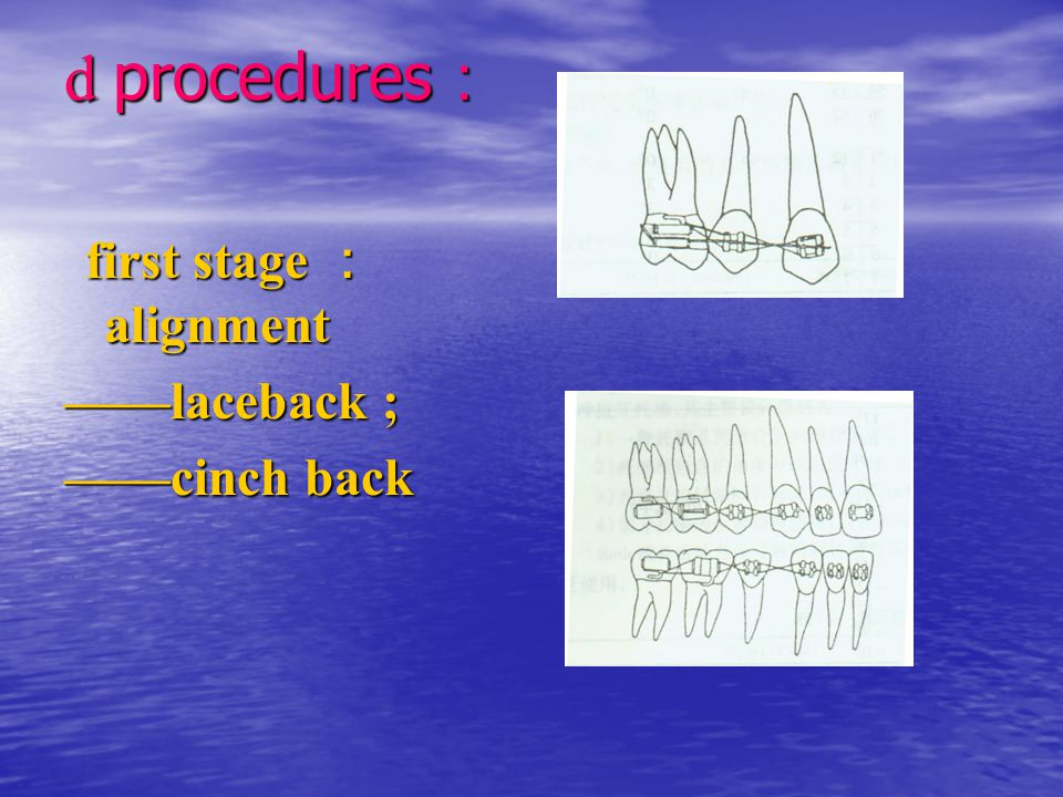 d procedures: first stage :alignment ——laceback ; ——cinch back