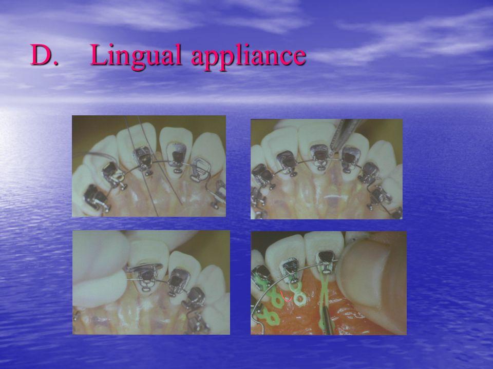 D. Lingual appliance