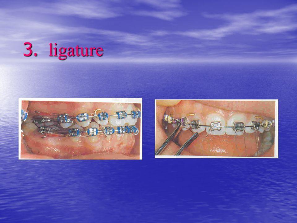 3. ligature