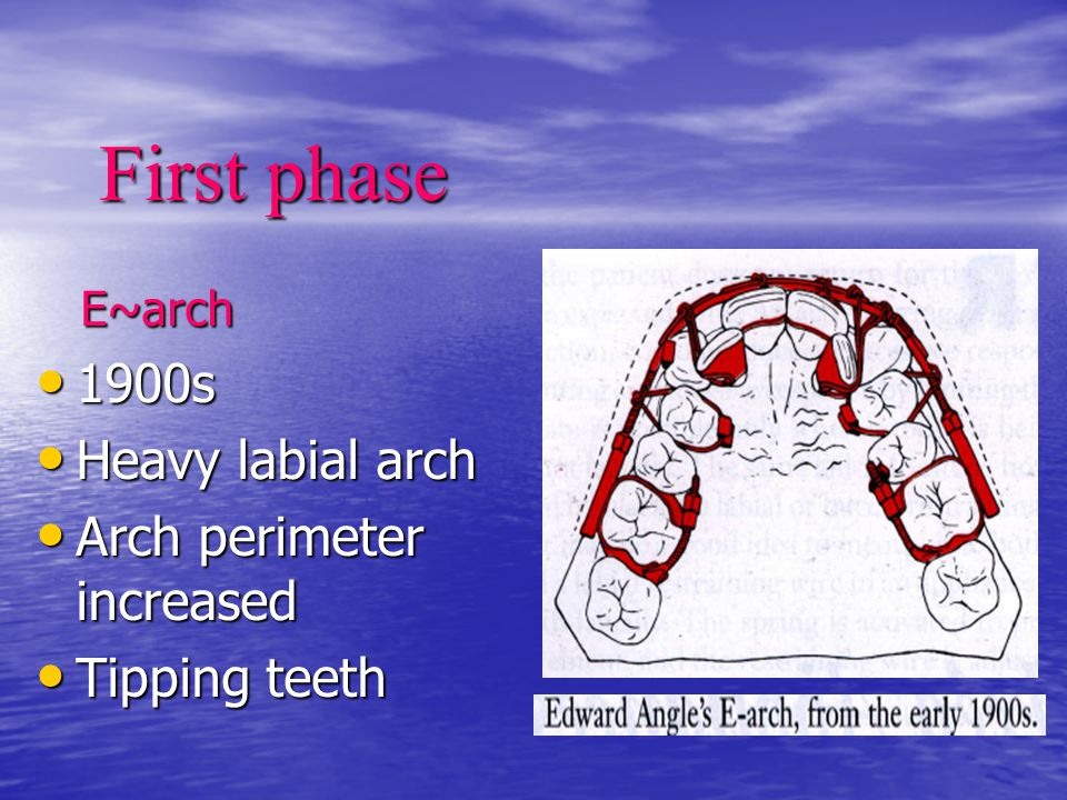 First phase 1900s Heavy labial arch Arch perimeter increased
