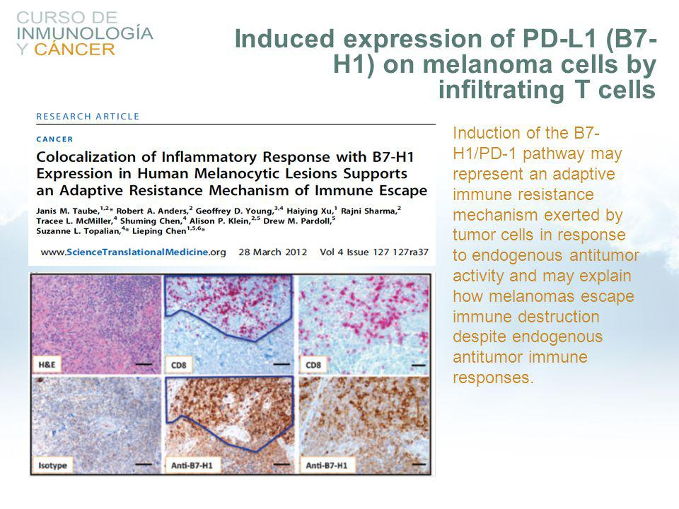 Induced expression of PD-L1 (B7-H1) on melanoma cells by infiltrating T cells