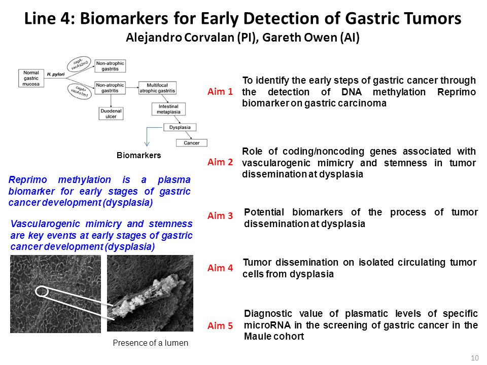 Line 4: Biomarkers for Early Detection of Gastric Tumors