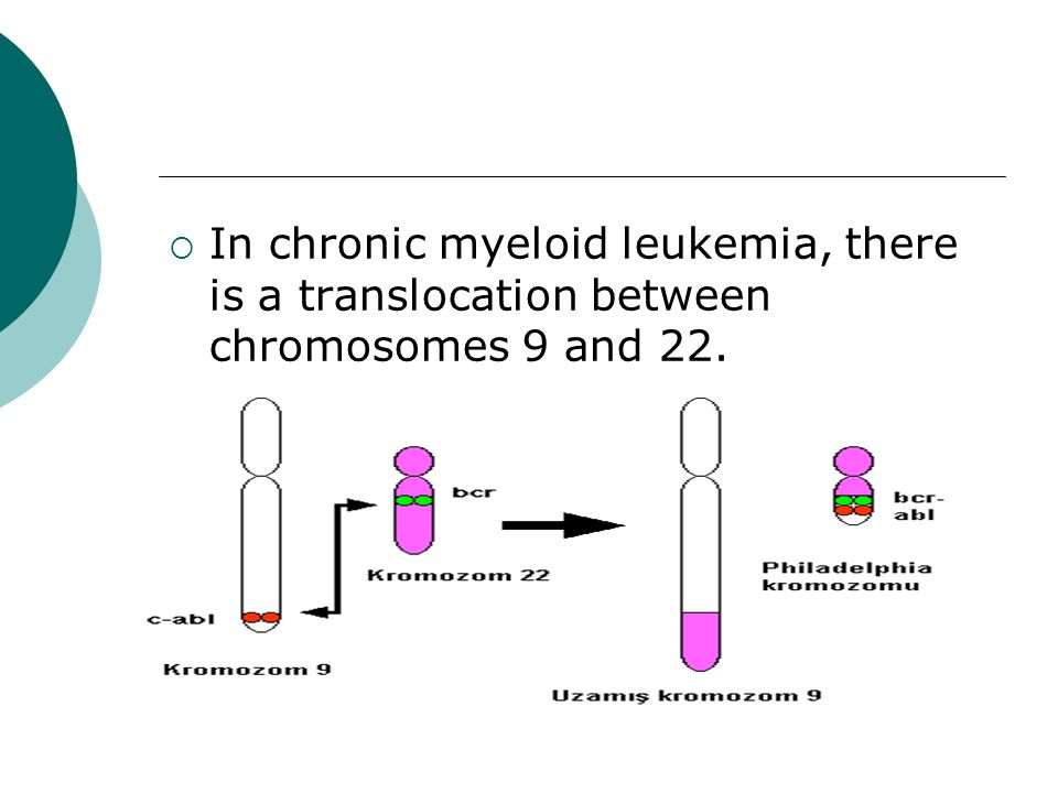 In chronic myeloid leukemia, there is a translocation between chromosomes 9 and 22.