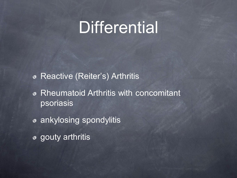 Differential Reactive (Reiter's) Arthritis