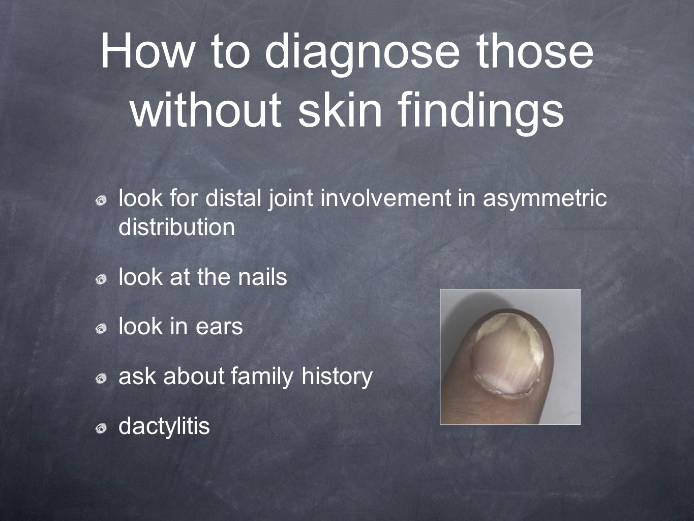 How to diagnose those without skin findings