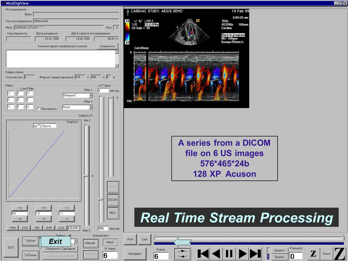 A series from a DICOM file on 6 US images Real Time Stream Processing