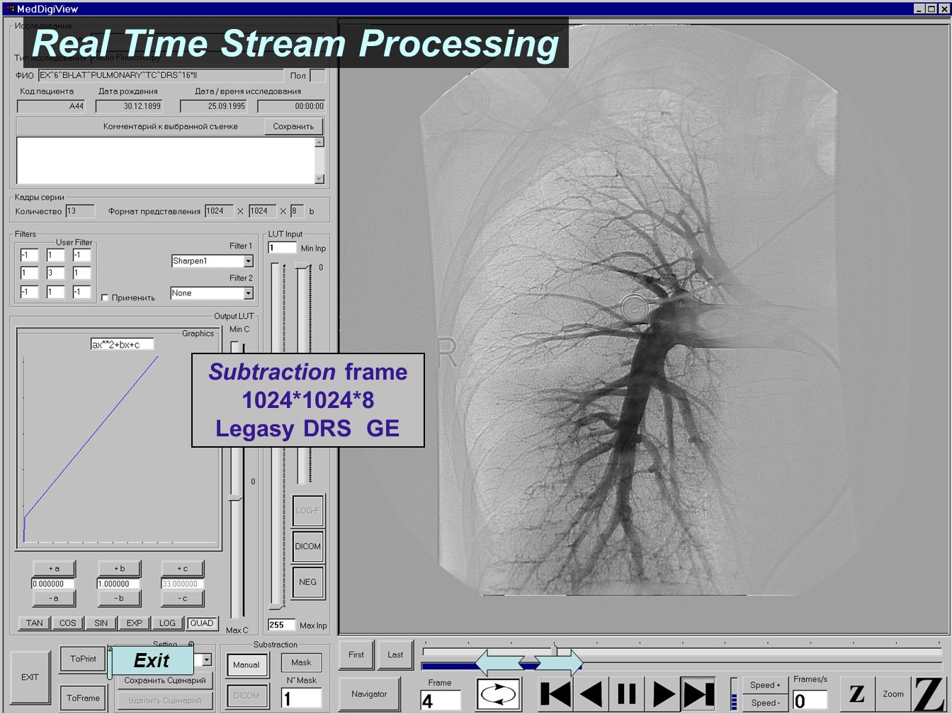 Real Time Stream Processing